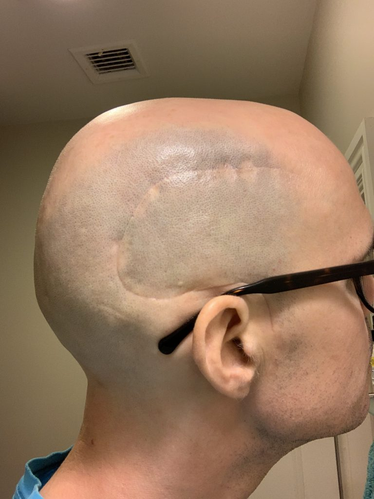 Photo of the right side of my head showing a clean, well-healed craniotomy scar